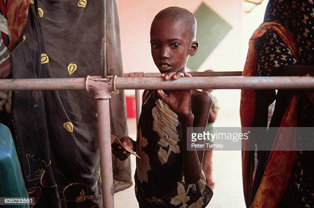 Young Somali child waits in line at a center for handicapped victims during the famine. In the 1980s civil war broke out when warlord factions joined...