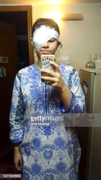 A young teenager girl taking her selfie in a cell phone of her bandaged eye after surgery