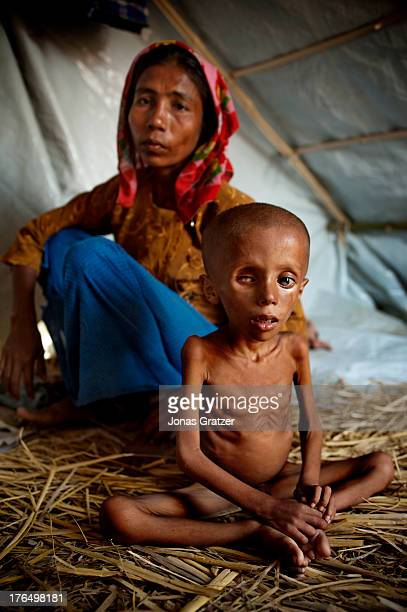 A young undernourished Rohingya boy from the IDP refugee camps of Sittwe lsits in front of his mother Sittwe now has over 125000 people who are...