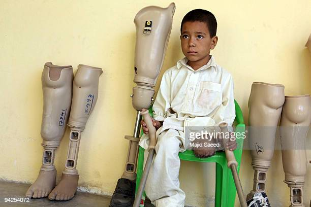 A young victim awaits treatment at the International Red Cross Orthopedic rehabilitation center on December 10 2009 in Kabul Afghanistan The ICRC...