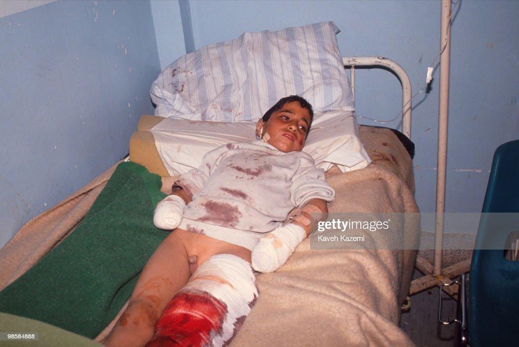 Gulf War Victim : News Photo