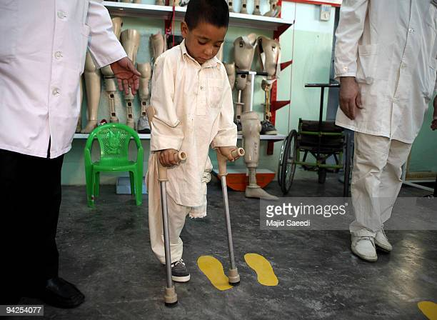 A young victim recieves physiotherapy at the International Red Cross Orthopedic rehabilitation center on December 10 2009 in Kabul Afghanistan The...