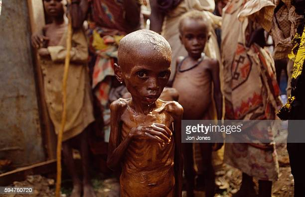 Young victims of starvation in the Somalian city of Baidoa
