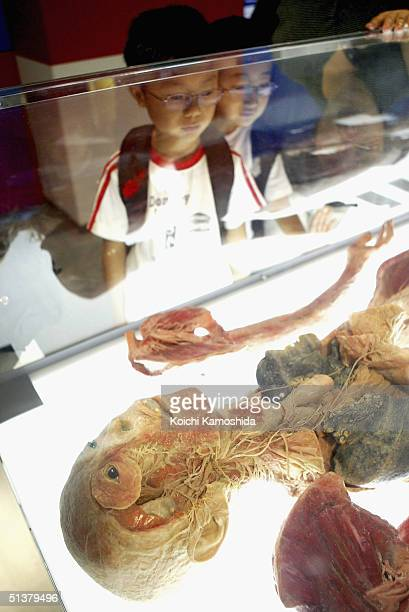 A young visitor gazes at a preserved plastomic Nervous System at the Mysteries of the Human Body exhibition which displays some 170 specimens on...