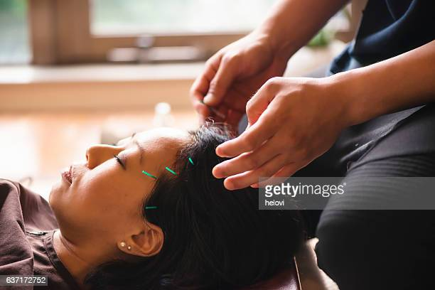 young woman at the acupuncture treatment - acupuncture needle stock pictures, royalty-free photos & images