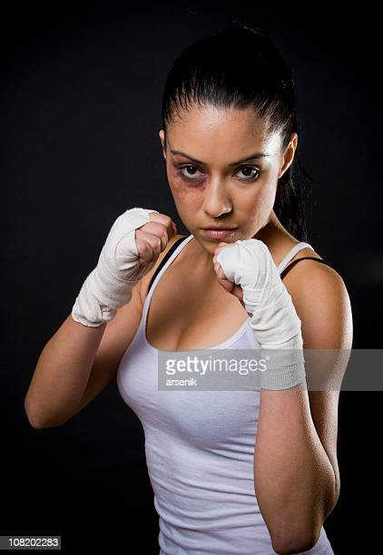 Young Woman Fighter with Black Eye and Taped Hands