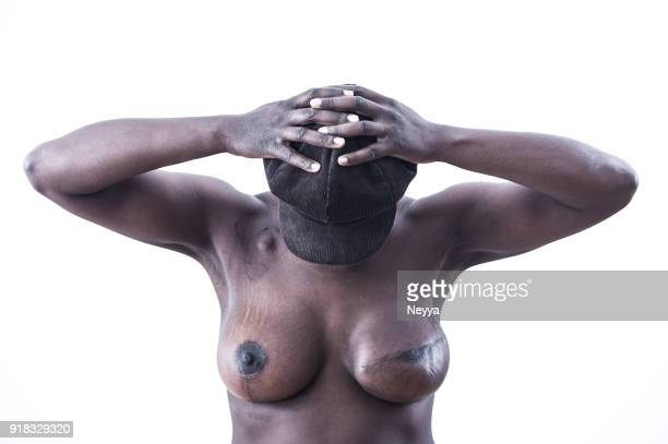 young woman has survived breast cancer - cancer de pele imagens e fotografias de stock
