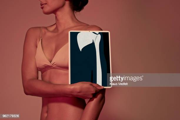 Young woman holding tablet in front of body to show arm bone