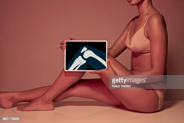 young woman holding tablet in front of leg to display knee bone - human body part photos et images de collection