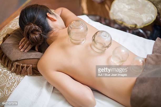 Young woman receiving vacuum cupping treatment