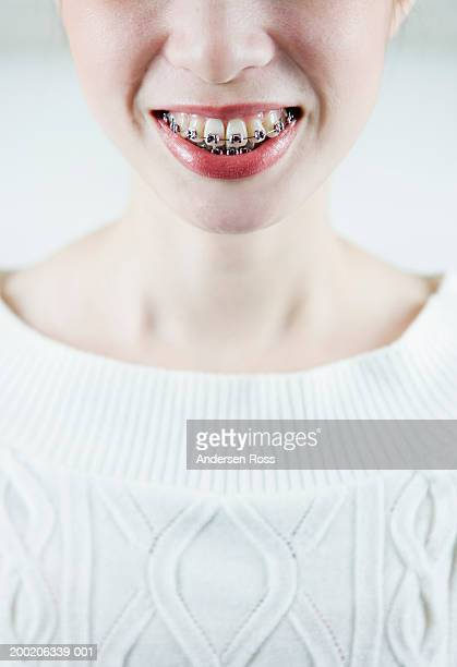Young woman wearing braces, smiling (focus on braces)