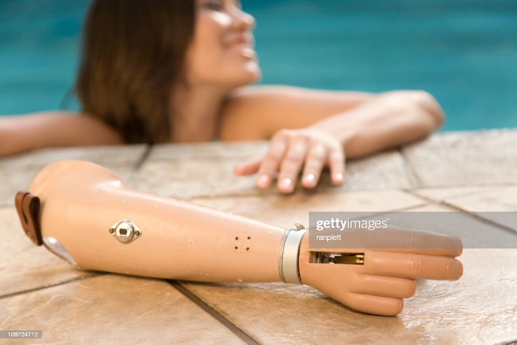 Young Woman with a Prosthetic Arm : Stock Photo