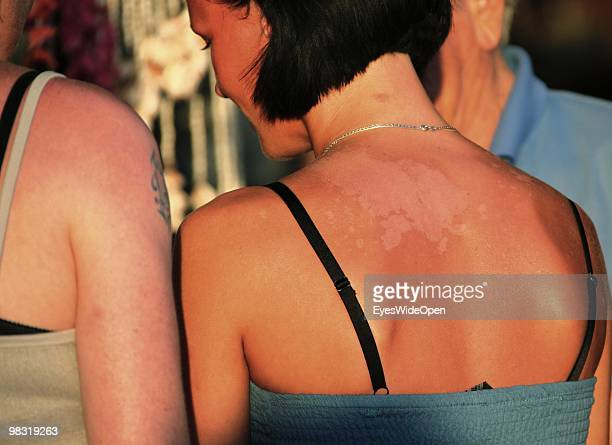 Young woman with a sunburn in Rhodes city on July 16 2009 in Rhodes Greece Rhodes is the largest of the Greek Dodecanes Islands