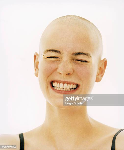 Young woman with bald head