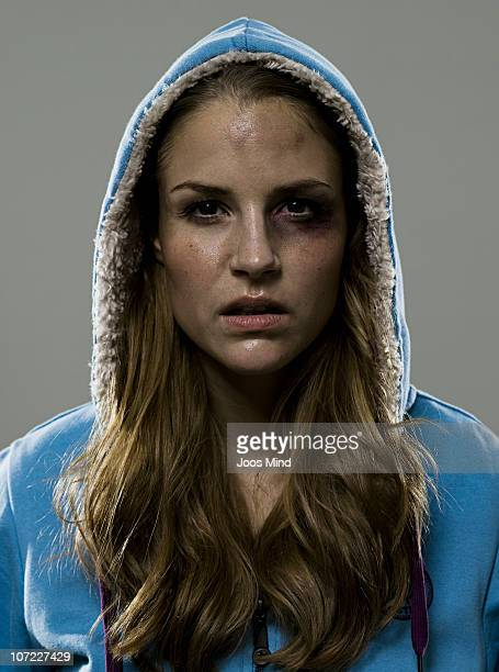 young woman with black eye after fight - battered woman stock pictures, royalty-free photos & images