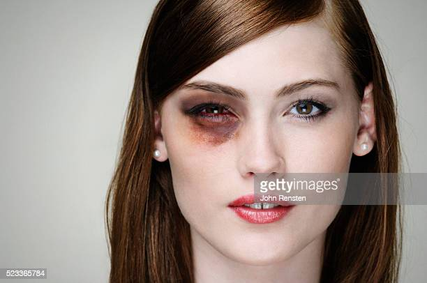 young woman with black eye - bruise stock photos and pictures