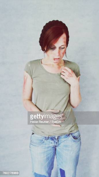 young woman with bruises standing against gray wall - equimose imagens e fotografias de stock