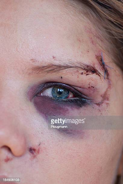 young woman with eye injury - close up - black eye stock pictures, royalty-free photos & images