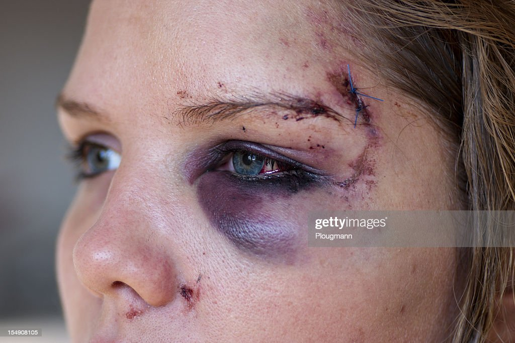Young woman with eye injury - close up : Stock Photo