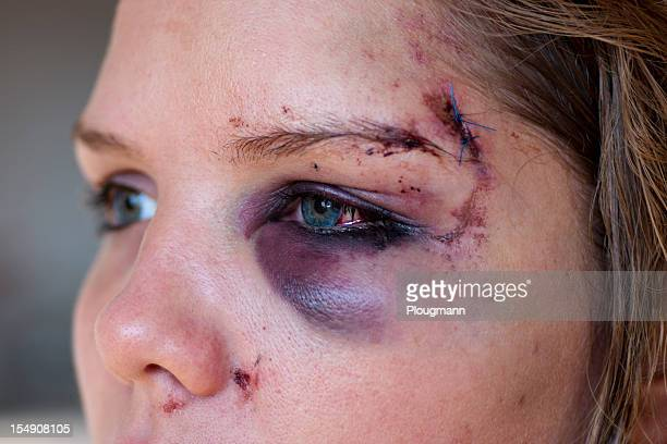 young woman with eye injury - close up - bruise stock photos and pictures
