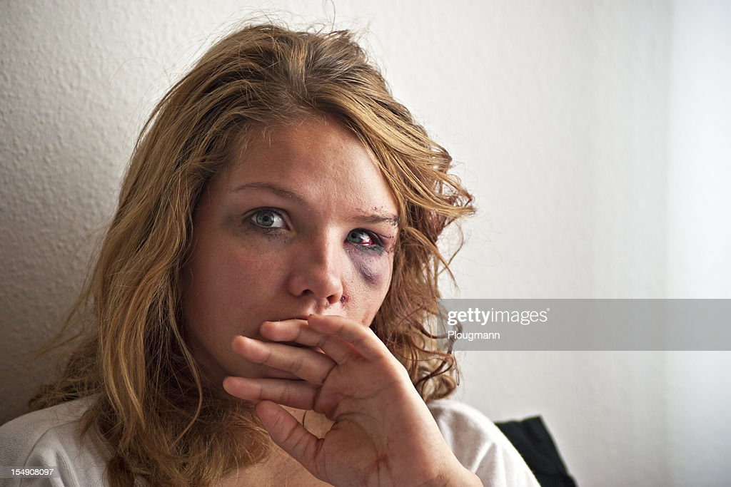 Young woman with eye injury : Stock Photo