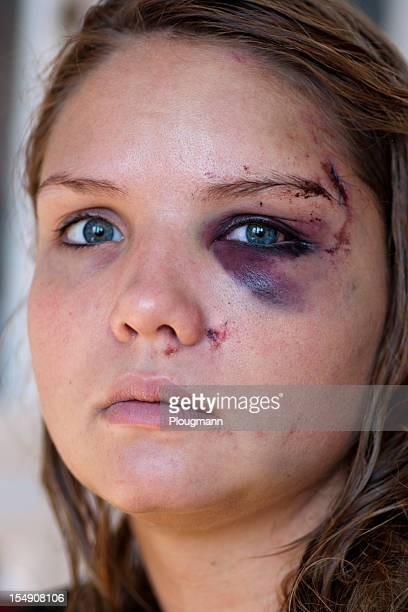 Young woman with eye injury
