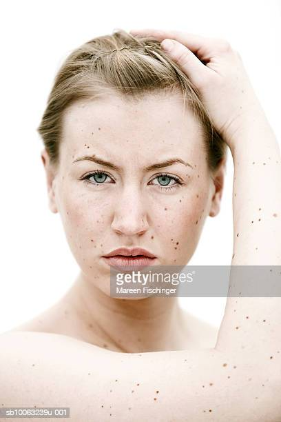 Young woman with moles on face and hand, portrait