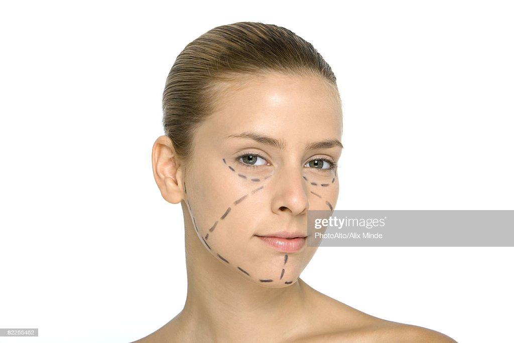 Young woman with plastic surgery markings on face, looking at camera : Stock Photo