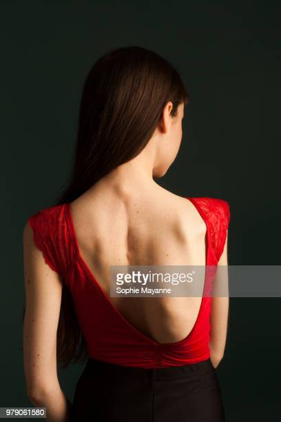 young woman with scoliosis in dance leotard - scoliosis stock photos and pictures