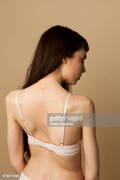 a young woman with scoliosis looking over shoulder - scoliosis stock photos and pictures