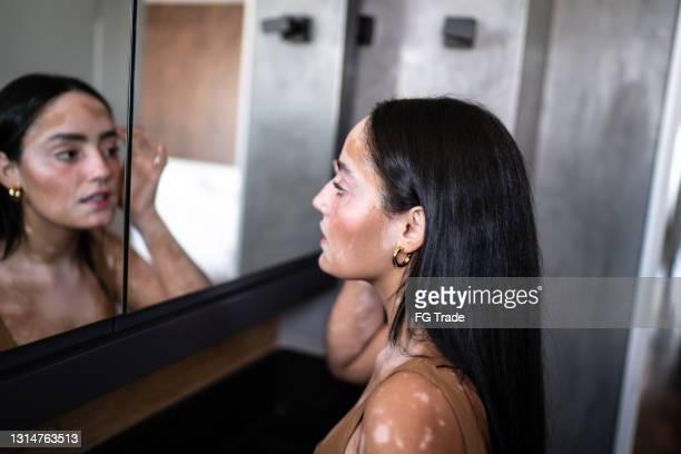junge frau mit vitiligo blick in den spiegel zu hause - öffentlicher auftritt stock-fotos und bilder