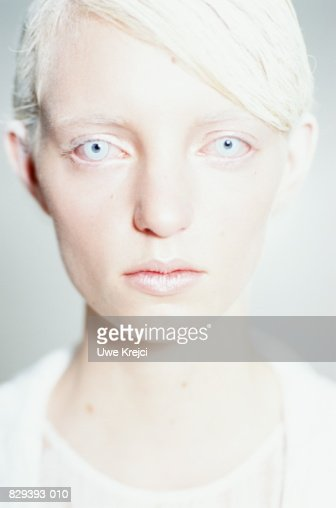 Young Woman With White Hair And Pale Blue Eyes Stock Photo