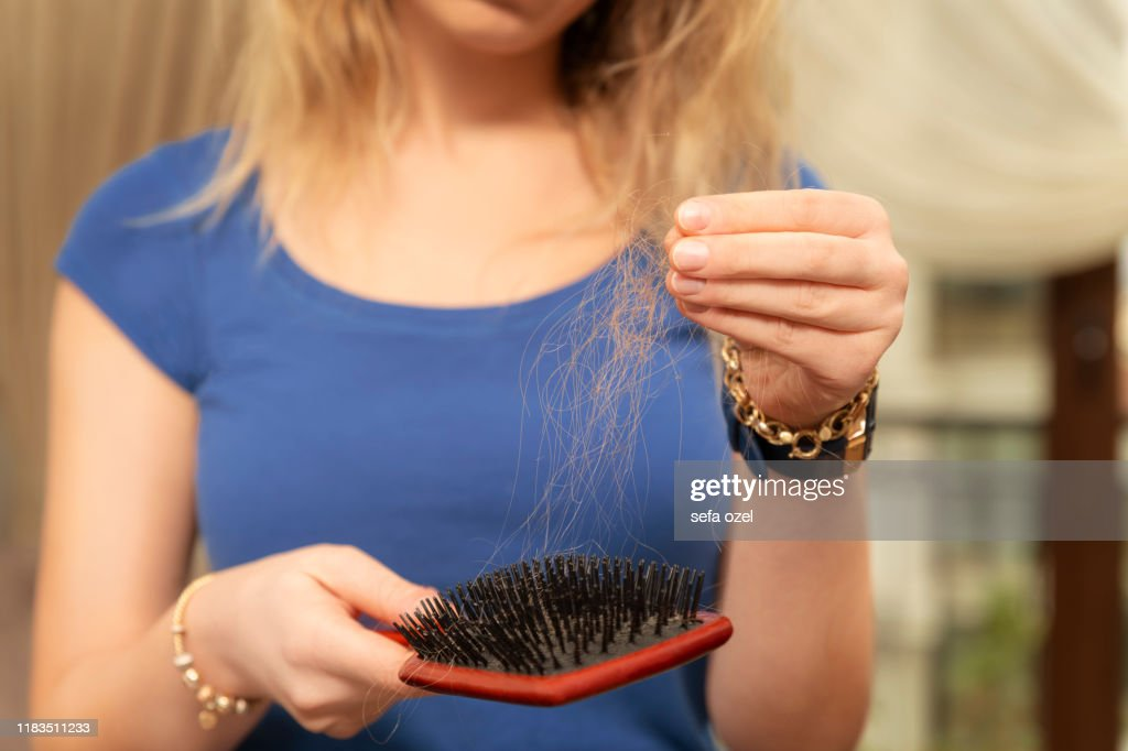 Young Woman Worried About Hair Loss : Stock Photo