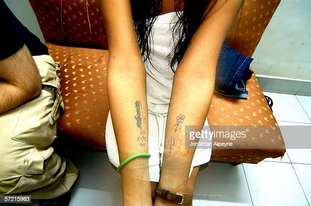 A young women shows her tattoos and scars to her clients after sex November 14 2005 in Siliguri Utar Praadesh India She has a burn mark which was...