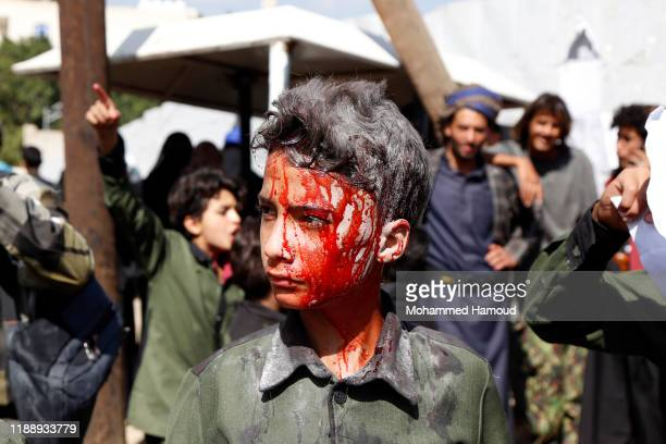 A young Yemeni boy covered with fake blood takes part in a protest against the ongoing war in front of the United Nations Office on World Children's...