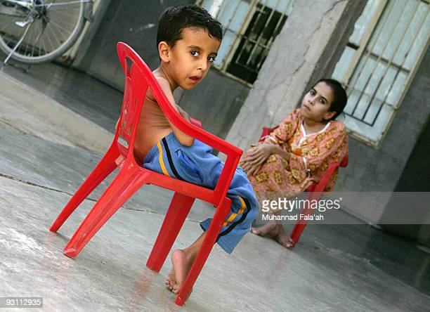 Yousif Hamed age 4 years old and his sister Inas who suffer from birth defects are seen on November 12 2009 at their house in the city of Falluja...