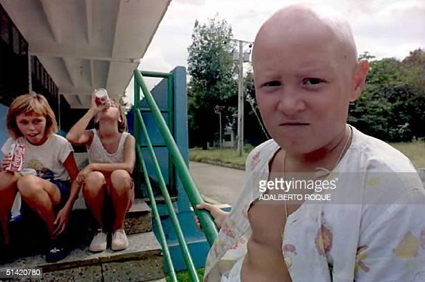 Yura Kudriaksea victim of the 1986 Chernobyl nuclear disasterwaits for his turn to receive psychiatric treatment at the Tarara Children Hospital in...