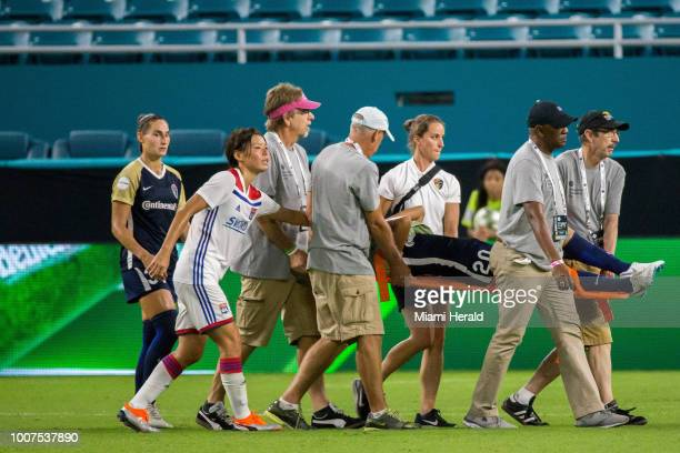 Yuri Kawamura leaves the game with an injury during the first half of the final of the 2018 Women's International Champions Cup between Olympique...