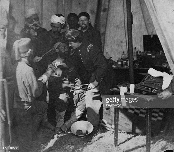 Zouave soldiers in a field hospital tending to an injured soldier who is about to suffer an amputation 1863 In an amputation a person has an arm or...