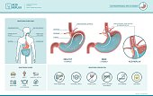 Acid reflux and heartburn infographic