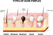 acne pimples