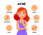 Acne types infographic elements vector flat illustration. Girl with acne on face and different skin problems icon set isolated on white background. Concept image for treatment acne theme.