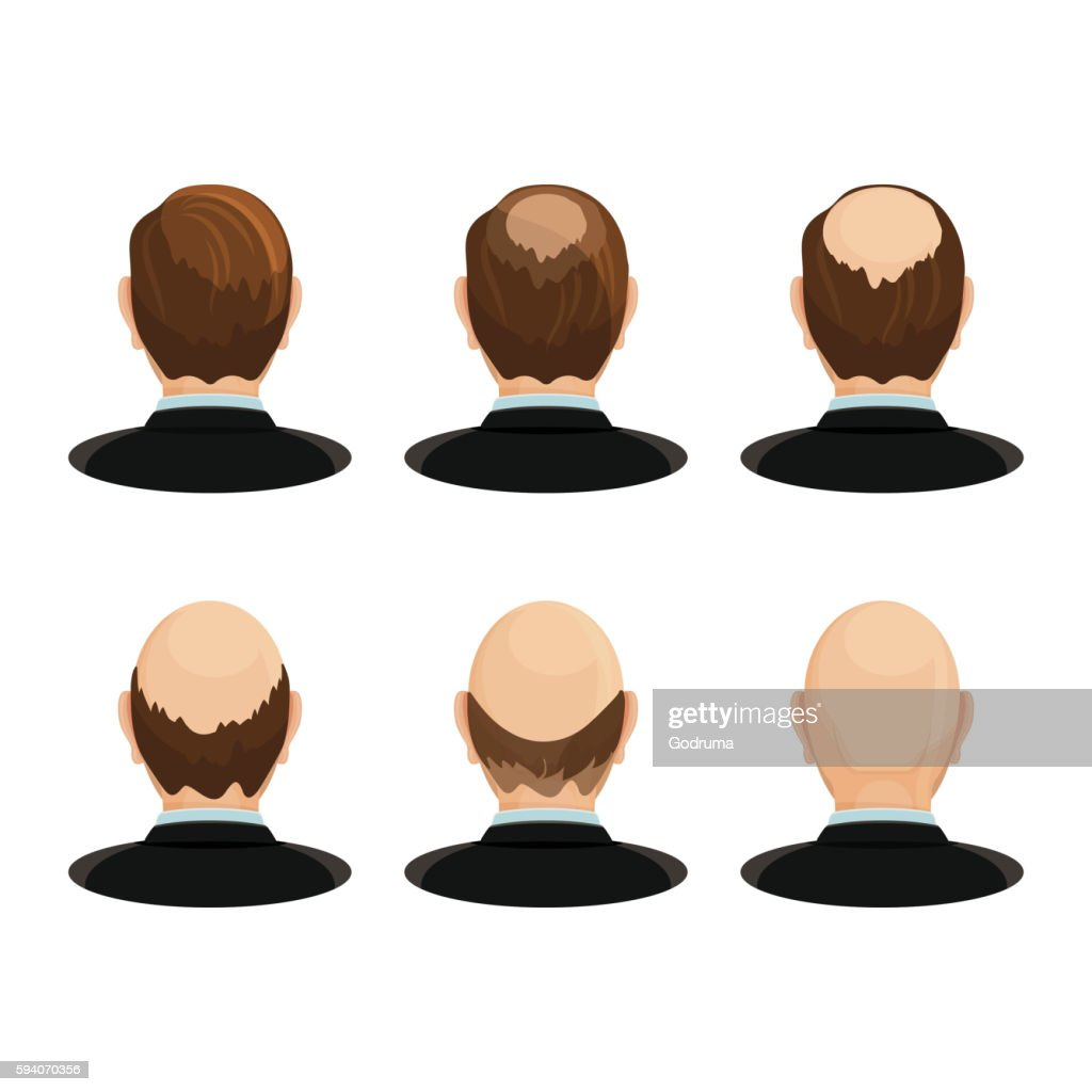 Alopecia concept. Set of heads showing the hairloss progress.