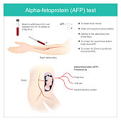 Alpha-fetoprotein (AFP) test. Use Analysis by AFP level. to detect liver cancer, and use to screen for down's syndrome.