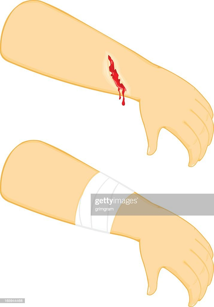 An illustration of an injury and a bandage