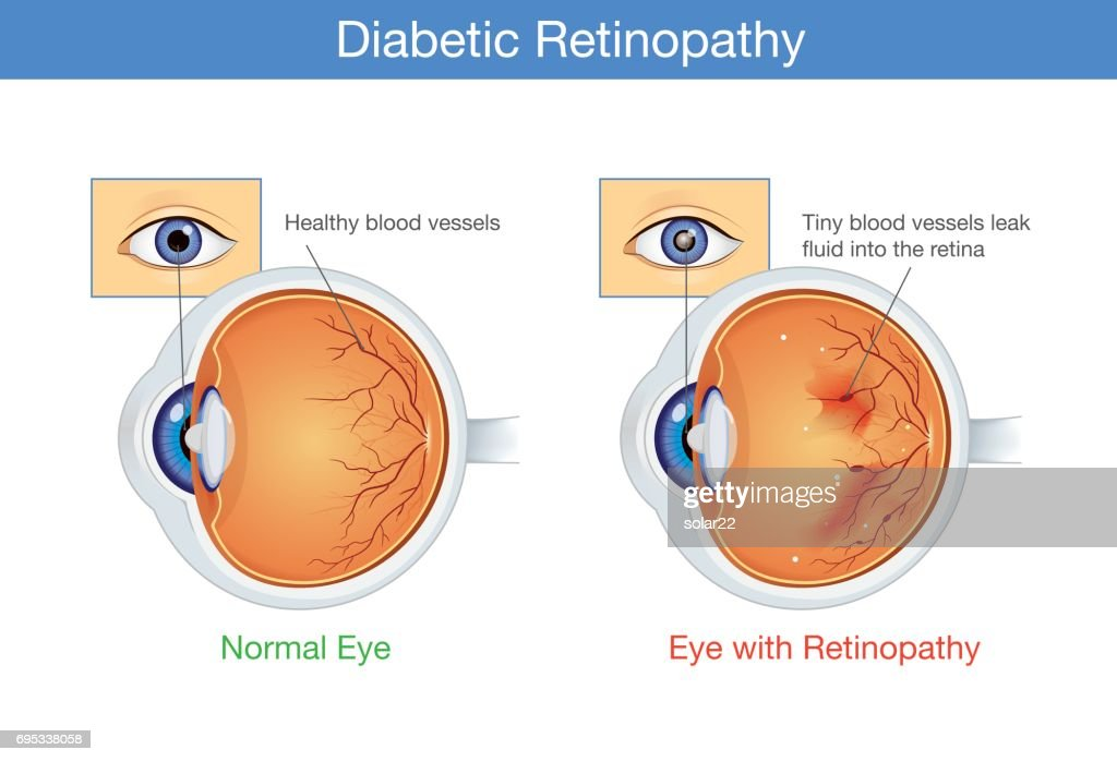 Anatomy of normal eye and Diabetic retinopathy.