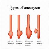 Aneurysm. Types . Infographics. Vector illustration