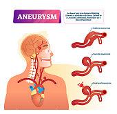 Aneurysm vector illustration. Labeled medical outward bulging vessel scheme