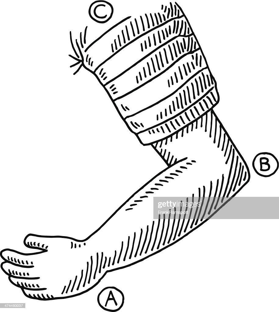 Arm Bent Elbow Drawing
