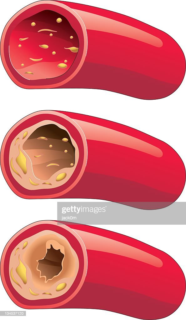 Atherosclerosis : stock vector